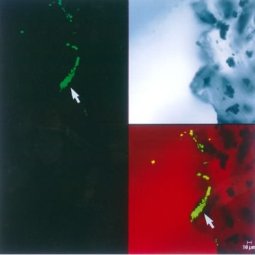 An image from a scanning confocal microscope